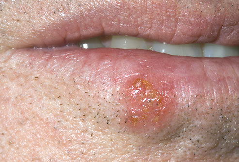 Cold Sore vs Canker Sore 1